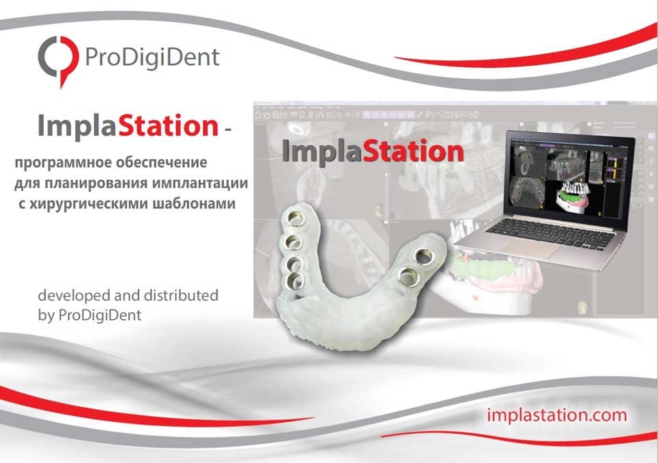 ImplaStation